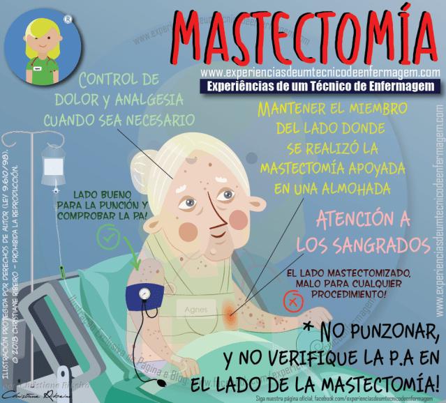 Mastectomía