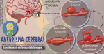El Aneurisma Cerebral