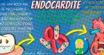 A Endocardite: O que é?