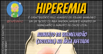 Hiperemia: O que é?