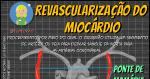 Revascularização do Miocárdio