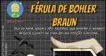 Férula de Bohler Braun