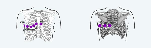 Derivaciones Derechas y Posteriores