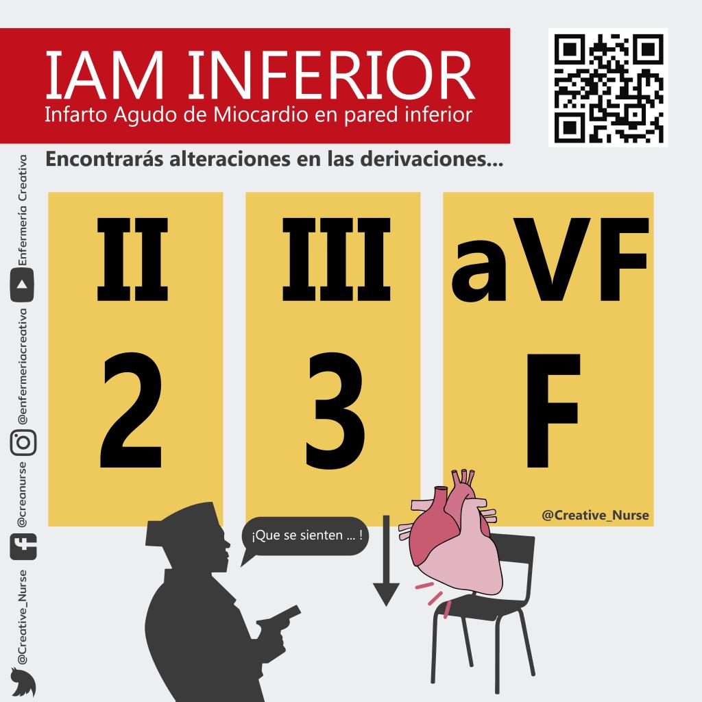 IAM Inferior