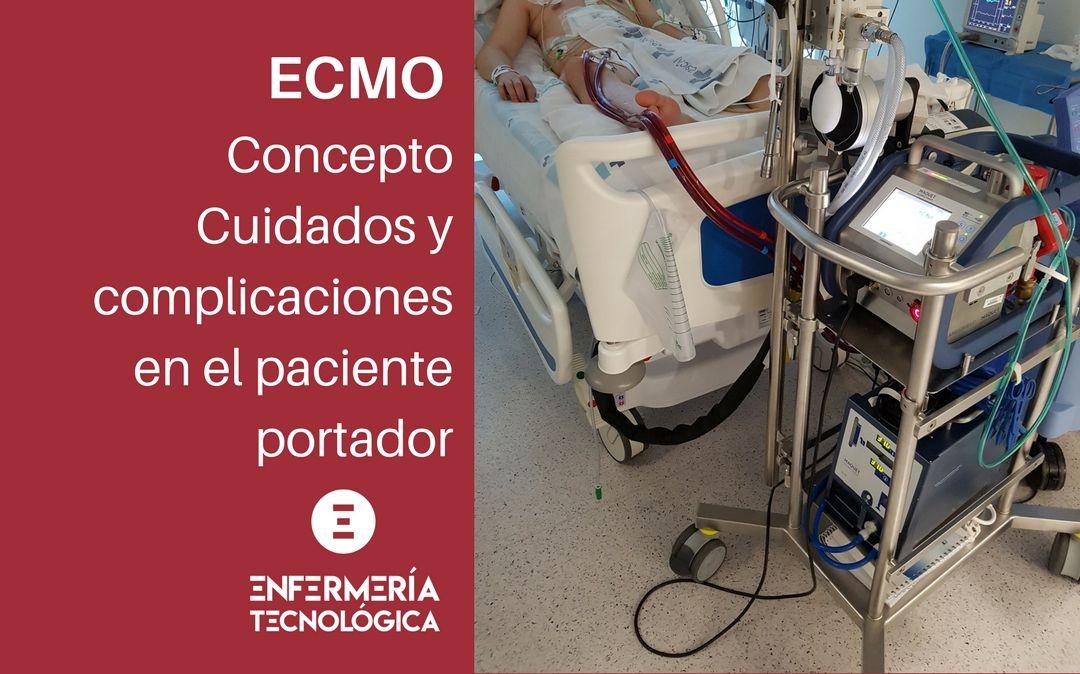 ECMO. Concepto, Cuidados y complicaciones en el paciente portador