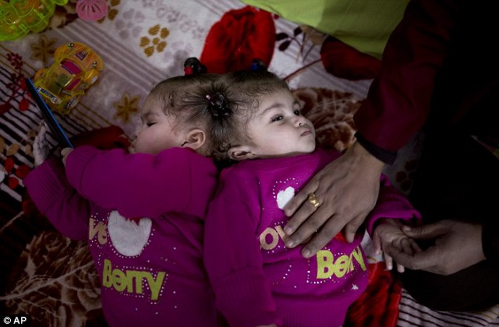 Conjoined Egyptian Twins Arrive at Riyadh for Treatment