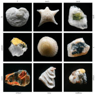 """""""Every grain of sand in the world is unique and beautiful when viewed through the microscope. If each grain of sand is so beautiful and unique, imagine how beautiful and unique each person is?"""" Gary Greenberg"""