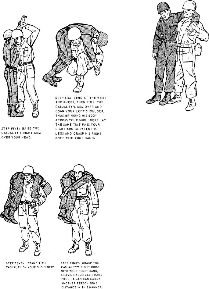 Figure 10-23.--Supporting carry.
