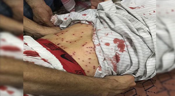 Bahraini Forces Storm Diraz, First Martyr Falls