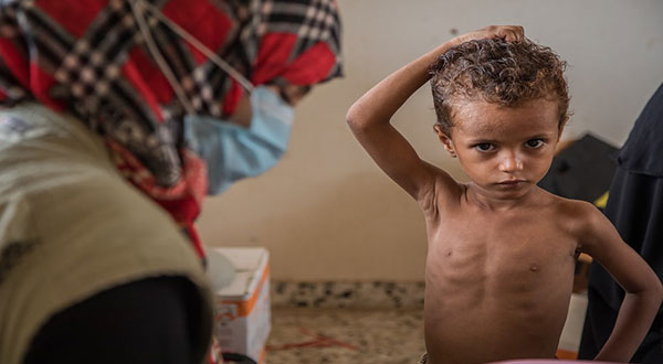 Yemen Cholera Outbreak [Photos]