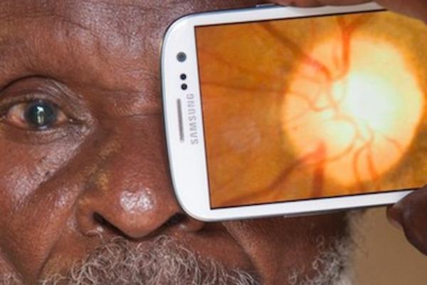 Gadget Kesehatan Mata