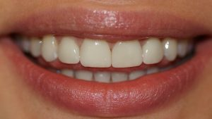 After porcelain veneers (click to enlarge)