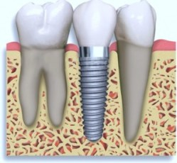 Dental implant Melbourne