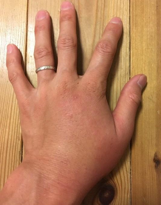 二次感染で腫れた左手