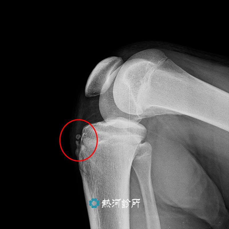 |肌腱鈣化|膝蓋生長板拉傷。該如何繼續舞動青春|熱河診所