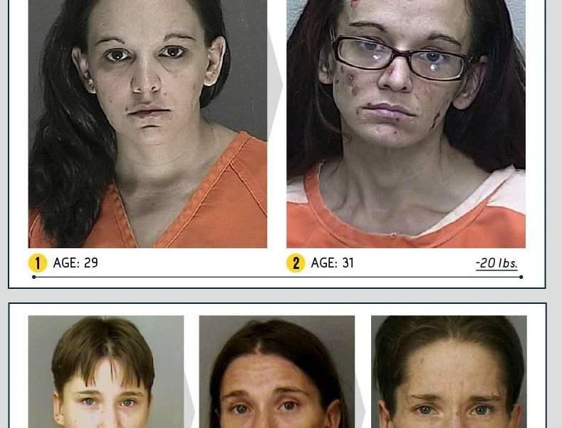 [FOTO y VIDEO] Mira como la droga deformó el rostro y apariencia de ellos