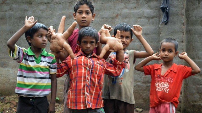 [FOTOS Barcroft India] El niño con manos gigantes que enfrenta al bullying en su colegio