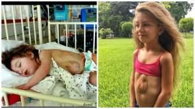El impactante caso de la niña que nació con el corazón fuera del pecho y cuenta su historia en Instagram