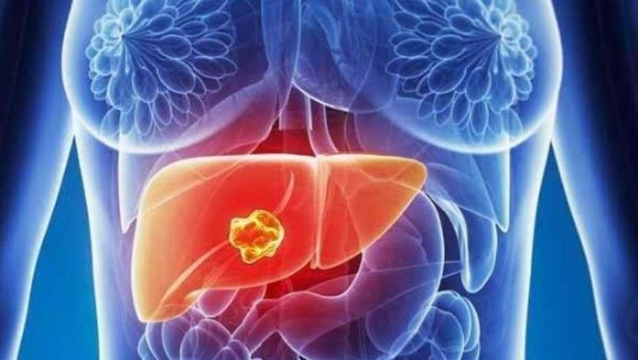 Cáncer hepático