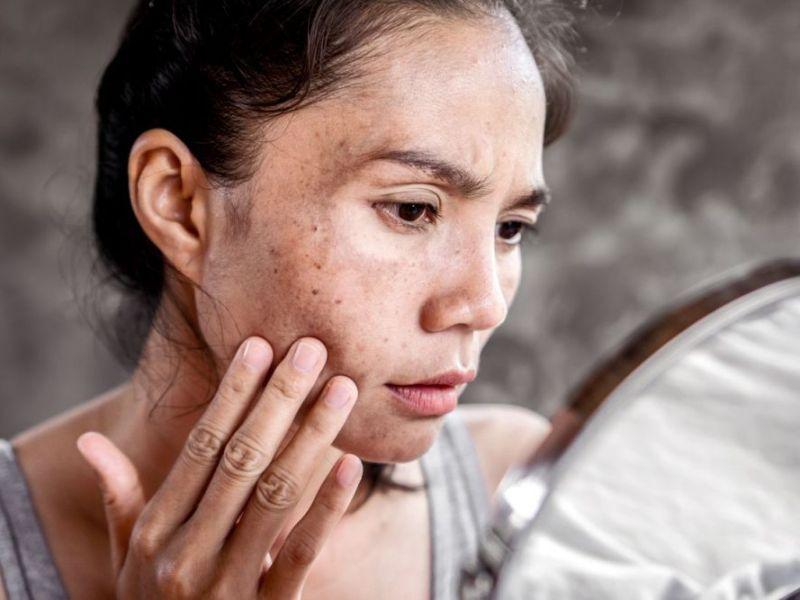 ¿Manchas en la piel? Cuatro datos sobre el melasma