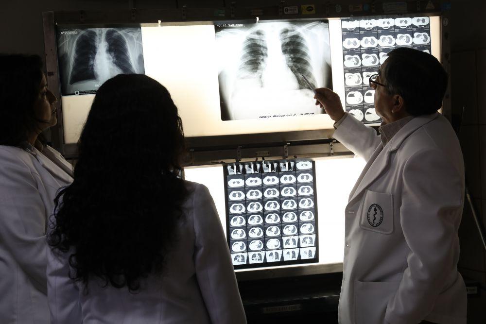 Casos de tuberculosis en el Perú