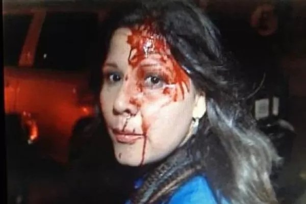 Periodista colombiana agredida por chavistas (Video)