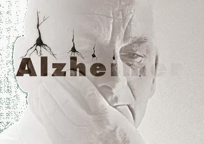 Científicos en Puerto Rico usarán 3 medicamentos para prevenir el mal de Alzheimer