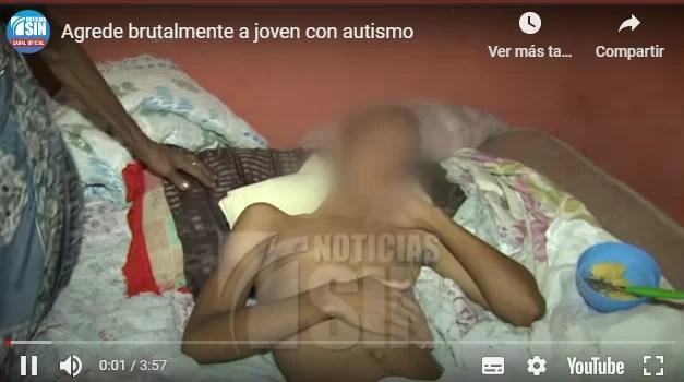 Video – Policía agrede brutalmente a joven con autismo por no usar mascarilla