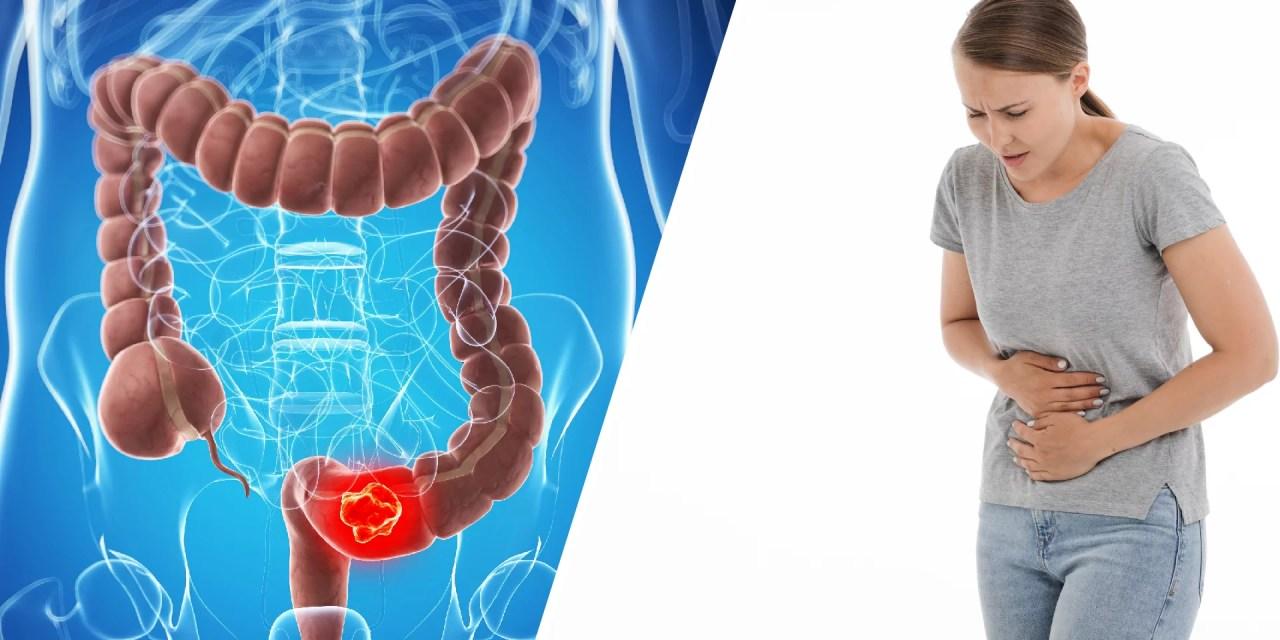 10 prácticos consejos para vivir con colitis ulcerosa