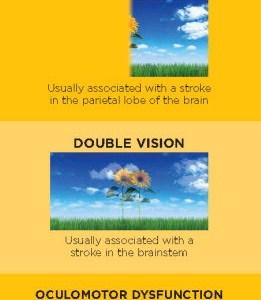 Strokes and Vision Loss