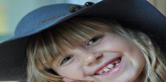 Perawatan Bleaching untuk Gigi Putih