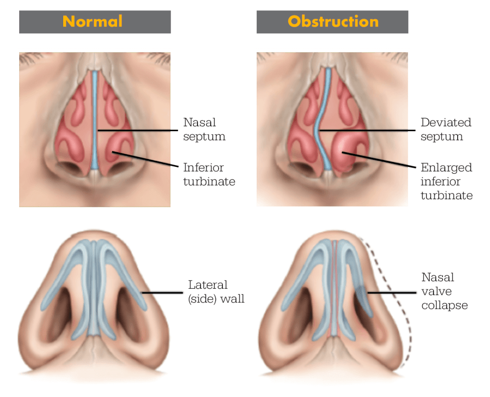 medium resolution of the most common conditions to impact patients are septal deviation turbinate hypertrophy and nasal valve collapse lateral wall collapse may equal or even