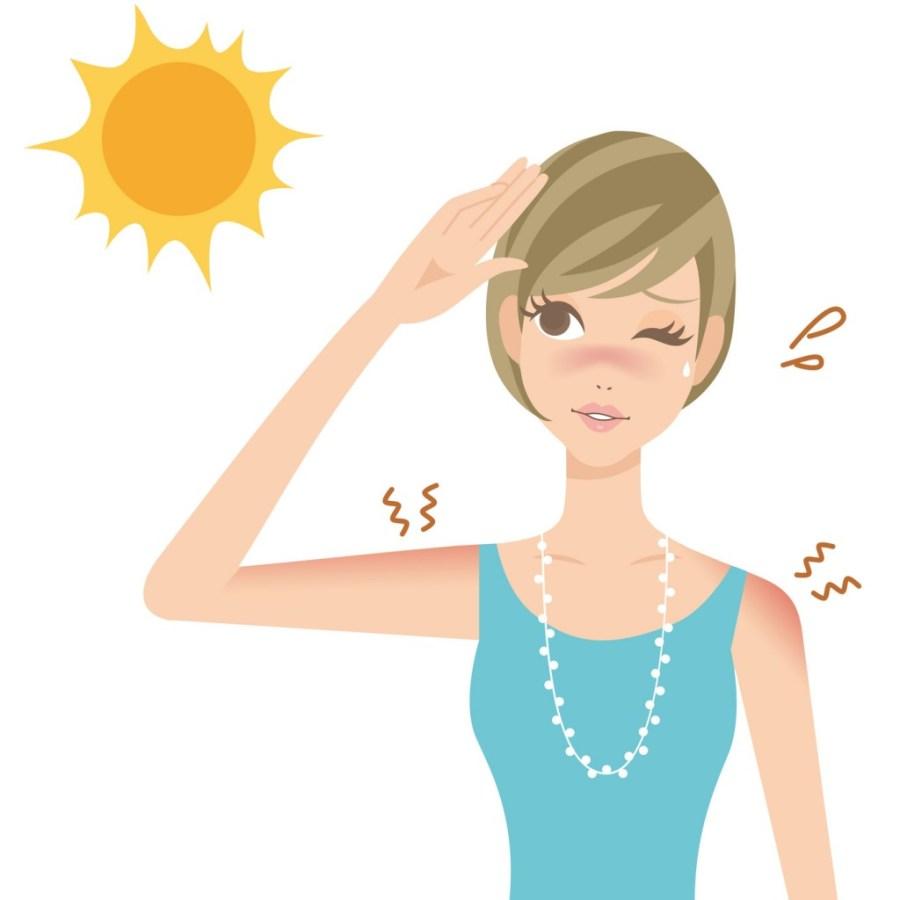 日焼けのむくみの解消法・対処法!原因・理由や治りを早める通販のおすすめ