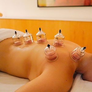 cupping melbourne