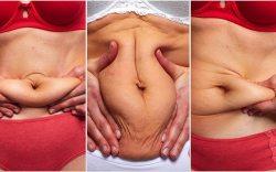 cómo se almacena la grasa abdominal