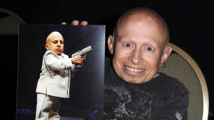 verne-8b7e53b7-2b69-4537-a79f-43b30ee99259-enteratecali-rolling stones-mini me-Verne Troyer