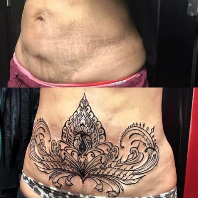 tummy tuck scar tattoo cover up ideas