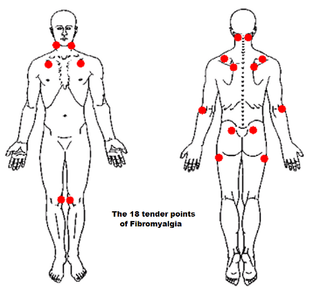 18 tender points of fibromyalgia diagram megaflow wiring enthesitis and enthesopathy in