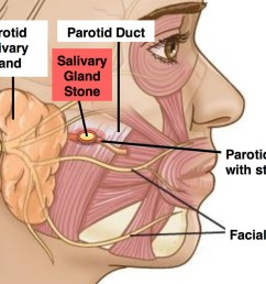 parotid duct stones block your salivary glands it creates a build up of saliva in your ducts causing them to swell  [ 1024 x 811 Pixel ]