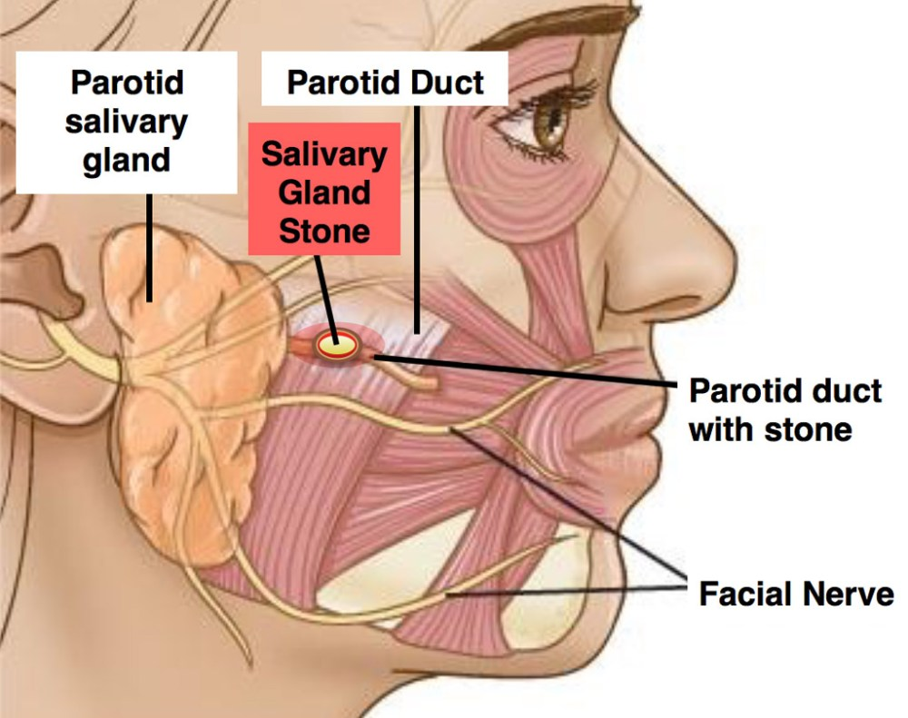 medium resolution of parotid duct stones block your salivary glands it creates a build up of saliva in your ducts causing them to swell