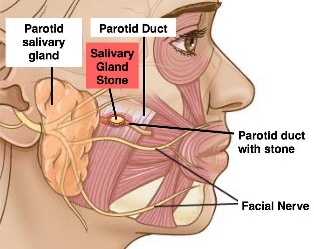 hight resolution of parotid duct stones block your salivary glands it creates a build up of saliva in your ducts causing them to swell