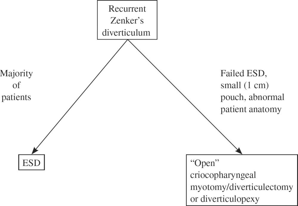 medium resolution of 26 1 lateral view barium esophagram demonstrating a recurrent zenker diverticulum after prior endoscopic staple diverticulostomy barium retention is noted