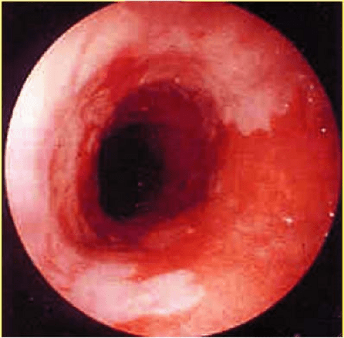 What are irregular Z-lines of the esophagus? - mccnsulting ...