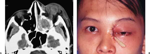 Orbital Complications of Maxillary Sinusitis  Ento Key