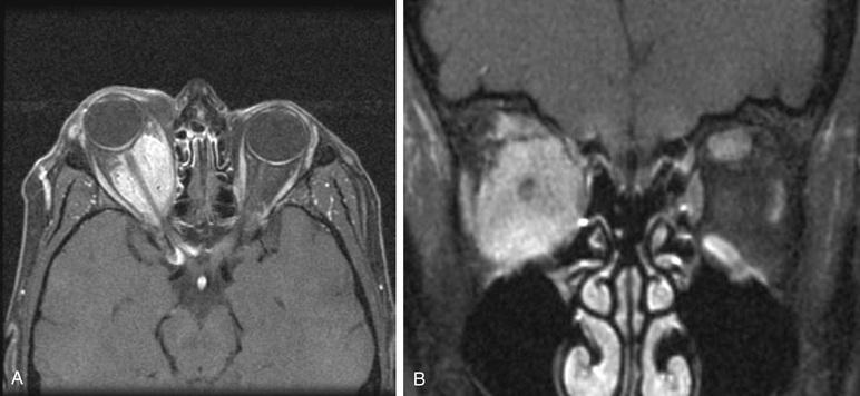 Optic Nerve And Peripheral Nerve Sheath Tumors Ento Key