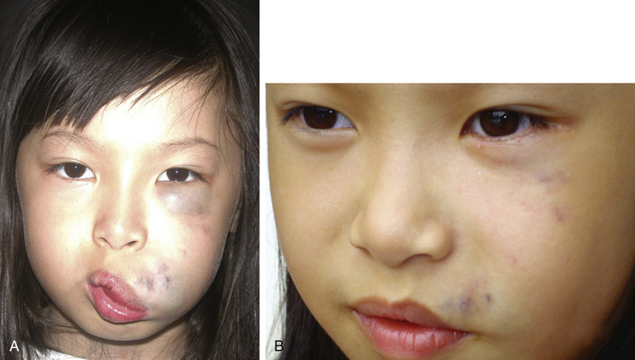 facial-vascular-malformation-sitting-indian
