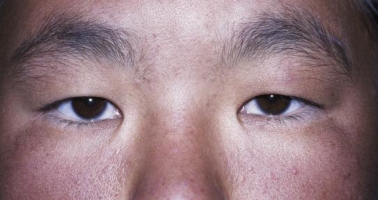 Comparative Anatomy of the Eyelids   Ento Key