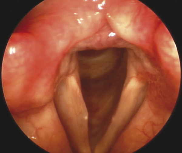 Vocal fold cyst. A unilateral cyst on the right vocal fold. The exophytic effect at the vibrating edge will result in an hourglass or incomplete closure pattern.