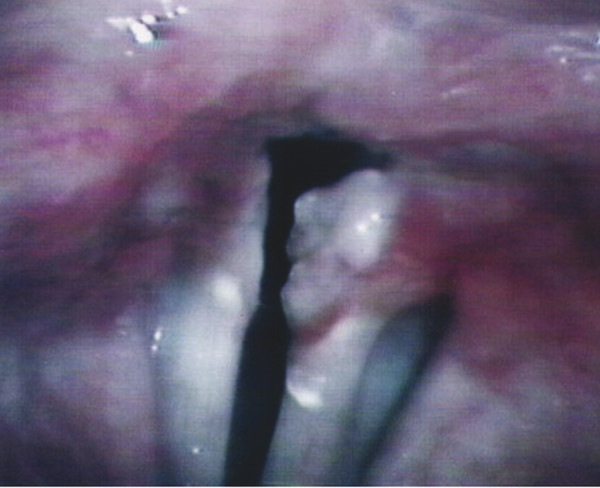 Vocal process granuloma; Granuloma on the left vocal fold with erythema and the development of possible granulation tissue on the left vocal process.