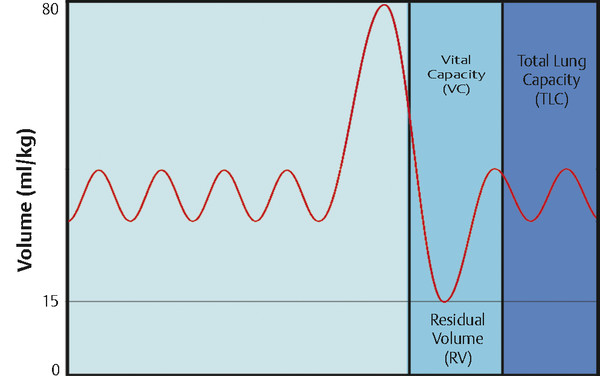 The relationship of vital capacity with other lung capacity measurements. The waveform trace shows four comfortable (tidal) breaths followed by a maximum inhalation and exhalation and return to tidal
